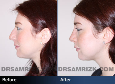 septoplasty before & after photos