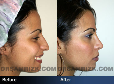 Female patient befor&after Nose Surgery - images