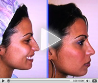 NY Rhinoplasty videos