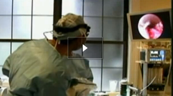 Watch Video: ABC News June 2009 3D High Definition Rapid Recovery Rhinoplasty