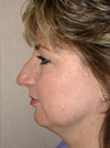 facelift before after pictures