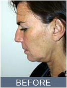 NYC Rhinoplasty - before image