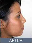 photo Female after procedure surgical rhinoplasty