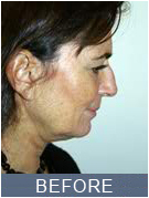 NYC Rhinoplasty - before picture