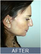 NYC Rhinoplasty - before photo