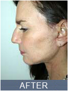 NYC Rhinoplasty - after image