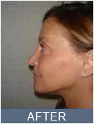 Female revision Rhinoplasty - photo