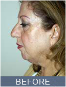 Facelift NYC pic before procedure
