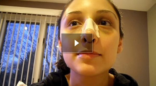 Female Rhinoplasty Patient day4