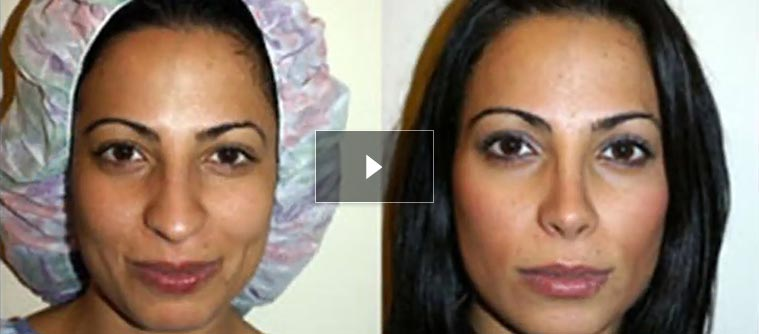 Middle Eastern and Mediterranean Rhinoplasty - Before and After Photos