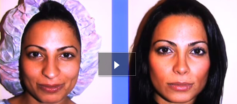 Rhinoplasty video thumb